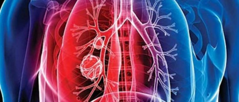 Чем опасен туберкулез
